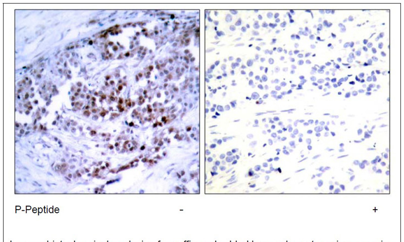 BCL-2 (Phospho-Ser70) Antibody (OAEC00064) in Human breast carcinoma cells using Immunohistochemistry