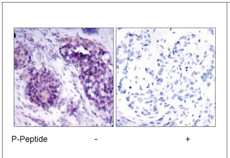 BCL-XL (Phospho-Ser62) Antibody (OAEC00065) in Human breast carcinoma cells using Immunohistochemistry