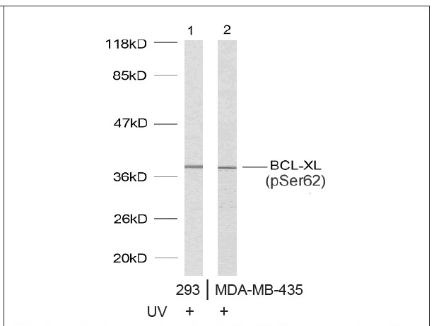 BCL-XL (Phospho-Ser62) Antibody (OAEC00065) in BCL-XL (phospho- Ser62) cells using Western Blot