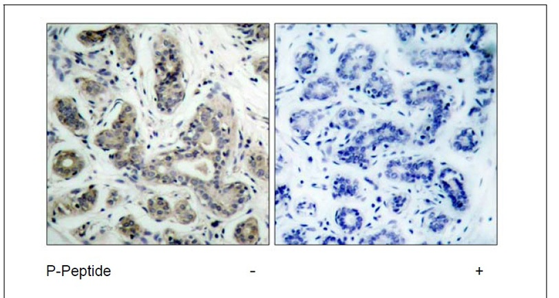 BAD (Phospho-Ser136) Antibody (OAEC00067) in Human breast carcinoma cells using Immunohistochemistry