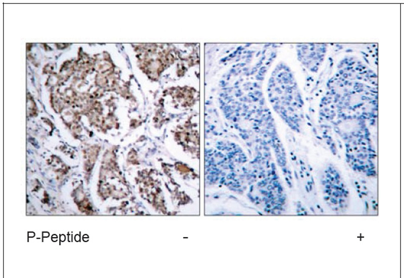 BAD (Phospho-Ser155) Antibody (OAEC00068) in Human breast carcinoma cells using Immunohistochemistry