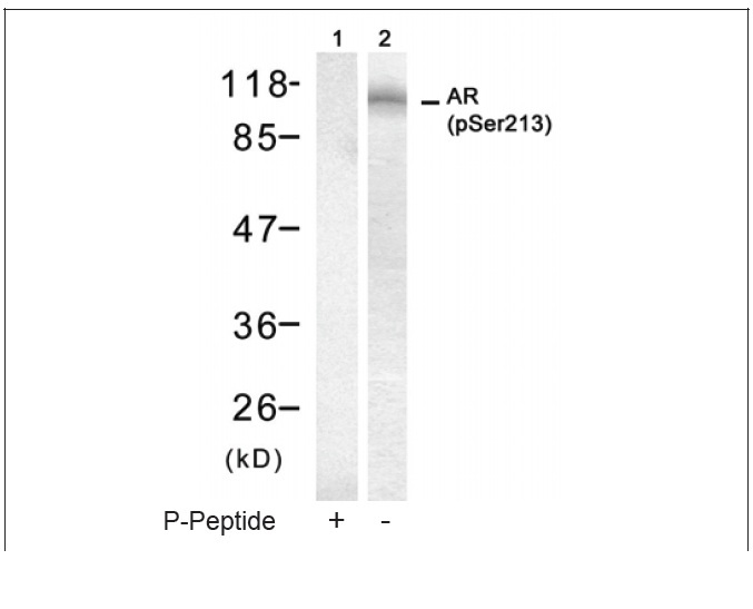 Androgen Receptor (Phospho-Ser213) Antibody (OAEC00117) in DU145 cells using Western Blot