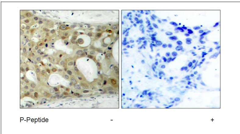Androgen Receptor (Phospho-Ser650) Antibody (OAEC00118) in Human breast carcinoma cells using Immunohistochemistry