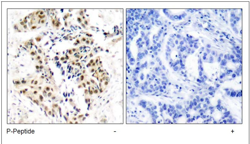 ATM (Phospho-Ser1981) Antibody (OAEC00120) in Human breast carcinoma cells using Immunohistochemistry