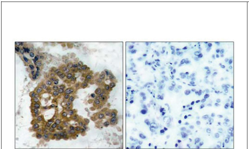 Akt2 (Phospho-Ser474) Antibody (OAEC00122) in Human lung carcinoma cells using Immunohistochemistry
