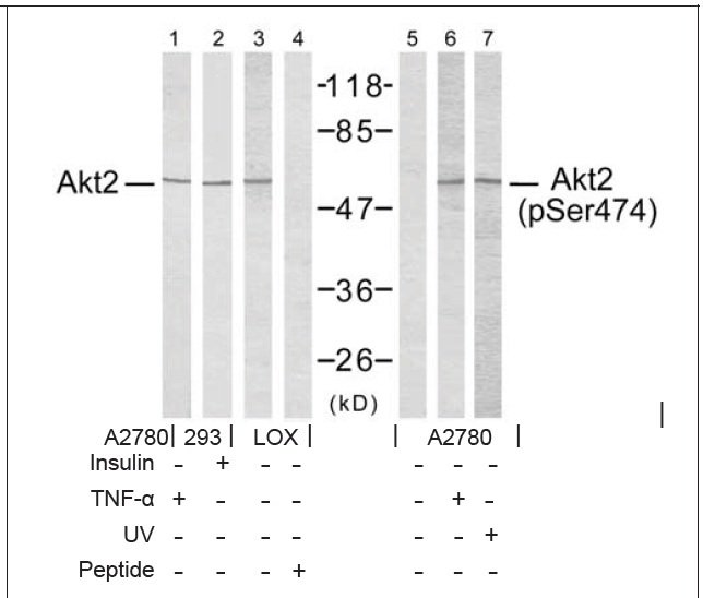 Akt2 (Phospho-Ser474) Antibody (OAEC00122) in Akt2 (Ab-474) cells using Western Blot
