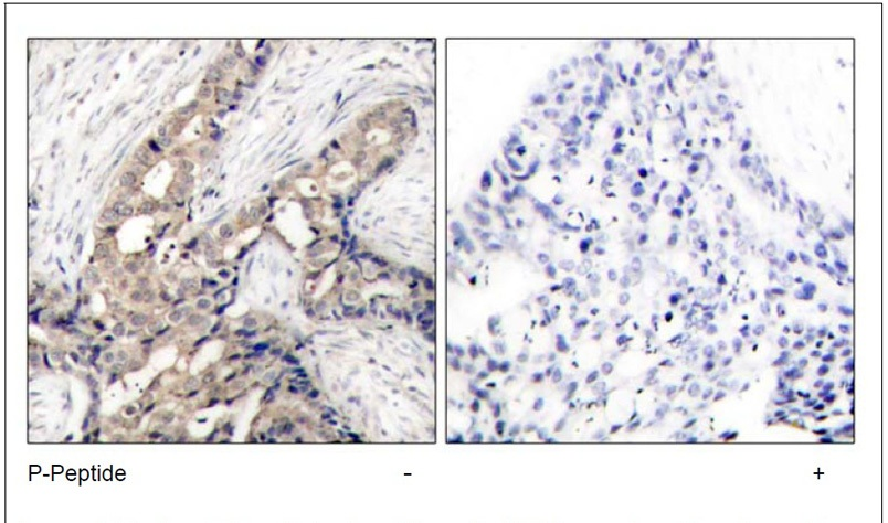 c-Abl (Phospho-Tyr412) Antibody (OAEC00123) in Human breast carcinoma cells using Immunohistochemistry