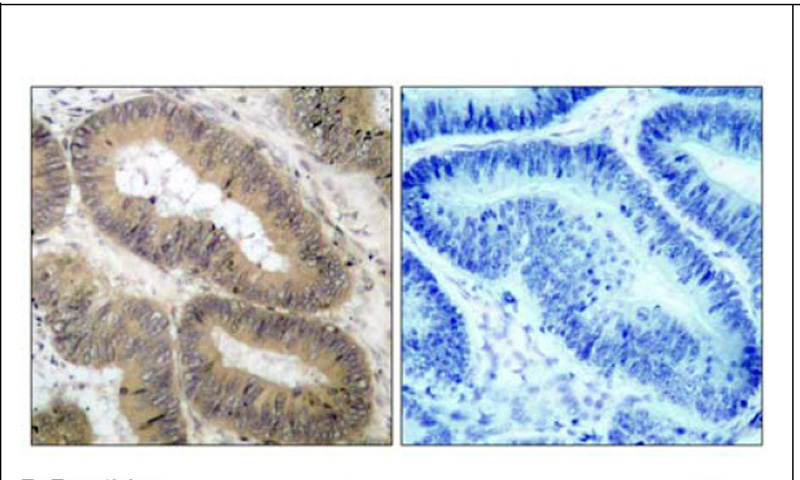 IKKα (Phospho-Thr23) Antibody (OAEC00127) in Human colon carcinoma cells using Immunohistochemistry