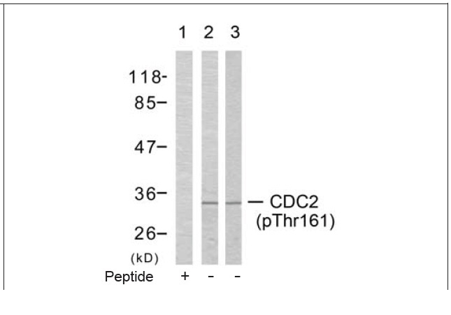 CDC2 (Phospho-Thr161) Antibody (OAEC00132) in COLO205 cells using Western Blot