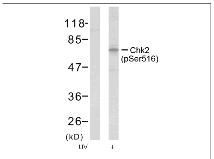 Chk2 (Phospho-Ser516) Antibody (OAEC00143) in Human Hela cells using Western Blot