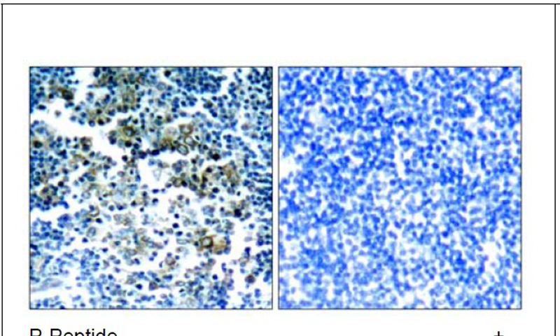 Bcr (Phospho-Tyr177) Antibody (OAEC00187) in Human tonsil tumor cells using Immunohistochemistry