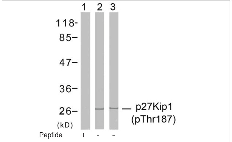 p27Kip1 (Phospho-Thr187) Antibody (OAEC00194) in Human Hela cells using Western Blot