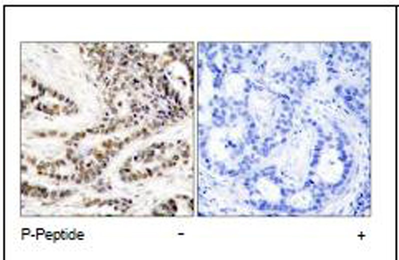 CREB (Phospho-Ser129) Antibody (OAEC00249) in Human breast carcinoma cells using Immunohistochemistry