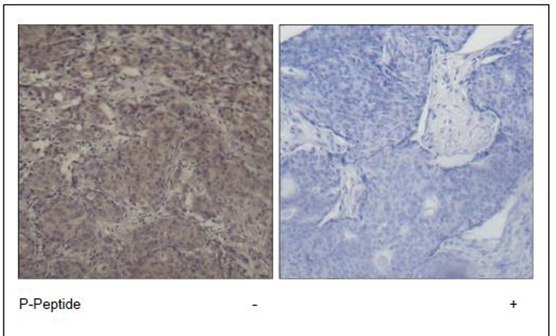 CREB (Phospho-Ser142) Antibody (OAEC00269) in Human breast carcinoma cells using Immunohistochemistry