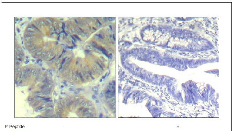 chk2 (phospho-Ser33) Antibody (OAEC00310) in Human colon carcinoma cells using Immunohistochemistry