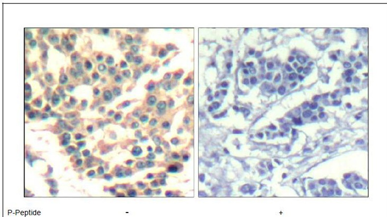 IKKα/Ikkβ (phospho-Ser180/181) Antibody (OAEC00312) in Human breast carcinoma cells using Immunohistochemistry