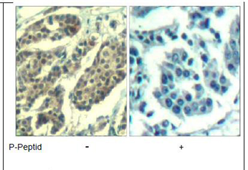 Cyclin B1 (phospho-Ser147) Antibody (OAEC00316) in Human breast carcinoma cells using Immunohistochemistry