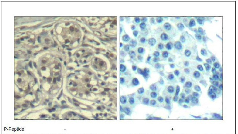 Cyclin E1 (phospho-Thr395) Antibody (OAEC00317) in Human breast carcinoma cells using Immunohistochemistry