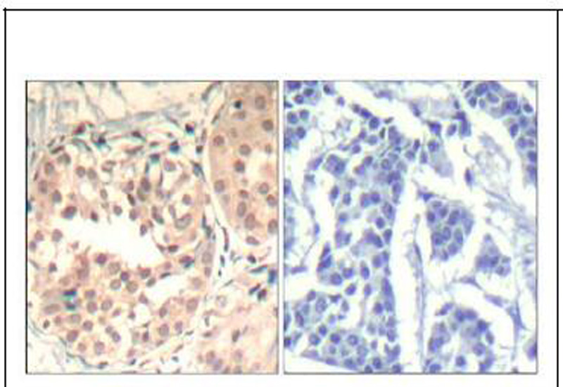 CDK6 (phospho-Tyr13) Antibody (OAEC00318) in Human breast carcinoma cells using Immunohistochemistry