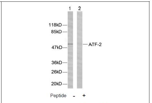 ATF-2 (Ab-62 or 44) Antibody (OAEC00379) in Human Hela cells using Western Blot