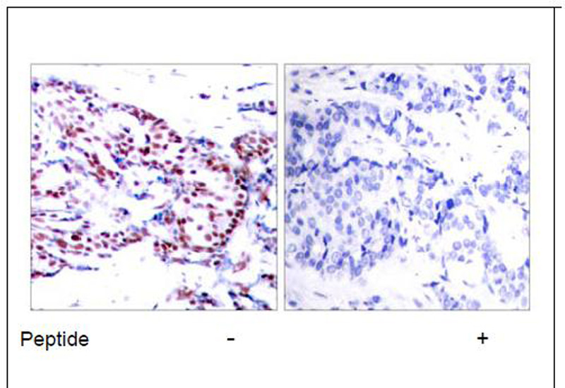 ATF-2 (Ab-71 or 53) Antibody (OAEC00381) in Human breast carcinoma cells using Immunohistochemistry