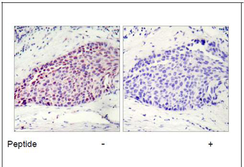 ATF-2 (Ab-112 or 94) Antibody (OAEC00383) in Human breast carcinoma cells using Immunohistochemistry