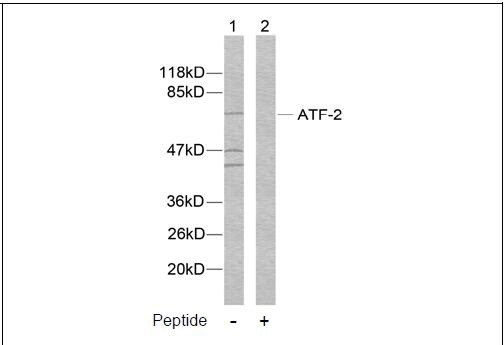 ATF-2 (Ab-112 or 94) Antibody (OAEC00383) in MDA-MB-435 cells using Western Blot