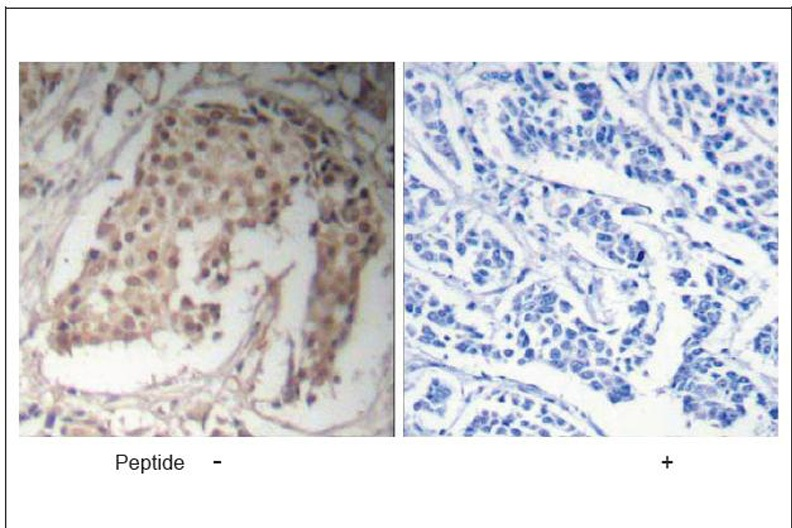 HNF4α (Ab-304) Antibody (OAEC00393) in Human breast carcinoma cells using Immunohistochemistry