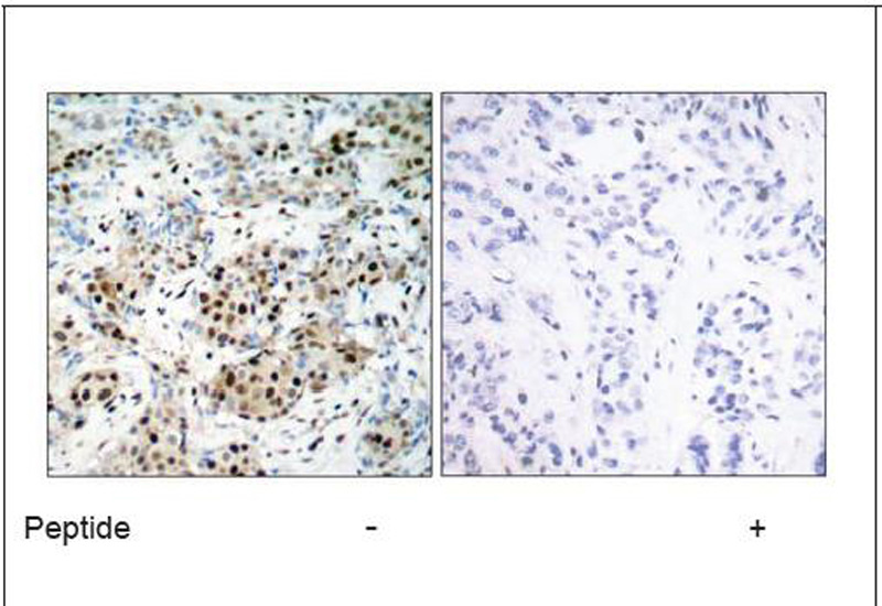 CREB (Ab-133) Antibody (OAEC00402) in Human breast carcinoma cells using Immunohistochemistry