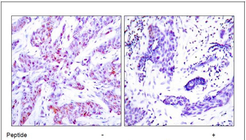 ATF4 (Ab-245) Antibody (OAEC00403) in Human breast carcinoma cells using Immunohistochemistry