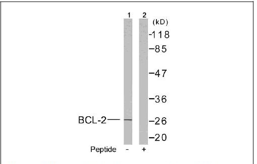 BCL-2(Ab-56) Antibody (OAEC00409) in MCF-7 cells using Western Blot