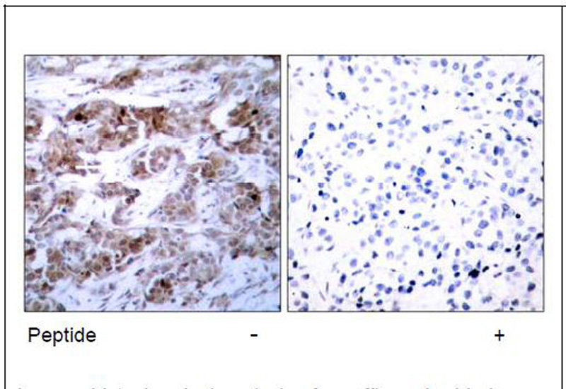BCL-2 (Ab-70) Antibody (OAEC00410) in Human breast carcinoma cells using Immunohistochemistry