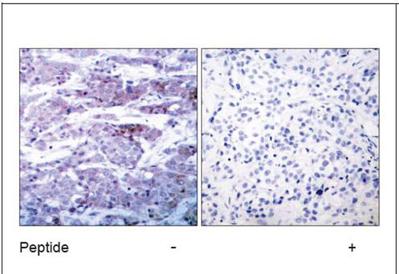 BAD (Ab-112) Antibody (OAEC00412) in Human breast carcinoma cells using Immunohistochemistry