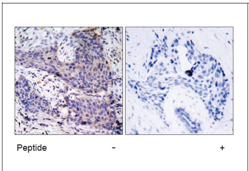 BAD (Ab-136) Antibody (OAEC00413) in Human breast carcinoma cells using Immunohistochemistry