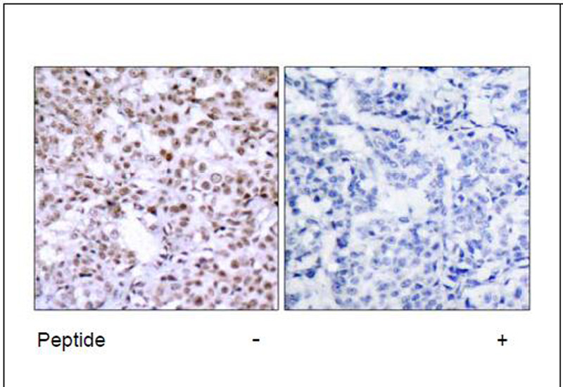 Chk2 (Ab-68) Antibody (OAEC00437) in Human breast carcinoma cells using Immunohistochemistry