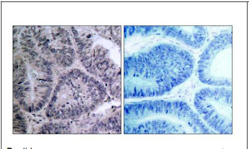 IKKα (Ab-23) Antibody (OAEC00471) in Human colon carcinoma cells using Immunohistochemistry