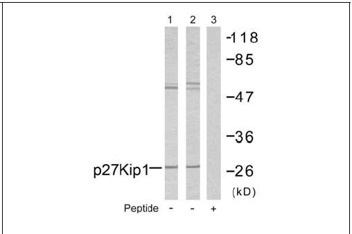 p27Kip1 (Ab-10) Antibody (OAEC00496) in A2780 cells using Western Blot