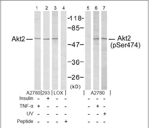 Akt2 (Ab-474) Antibody (OAEC00500) in Akt2 (Ab-474) cells using Western Blot