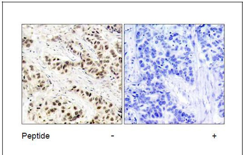 CDC2 (Ab-15) Antibody (OAEC00575) in Human breast carcinoma cells using Immunohistochemistry