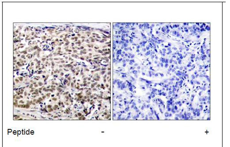 CREB (Ab-129) Antibody (OAEC00603) in Human breast carcinoma cells using Immunohistochemistry