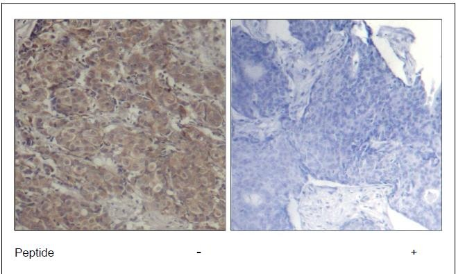 CREB (Ab-142) Antibody (OAEC00630) in Human breast carcinoma cells using Immunohistochemistry