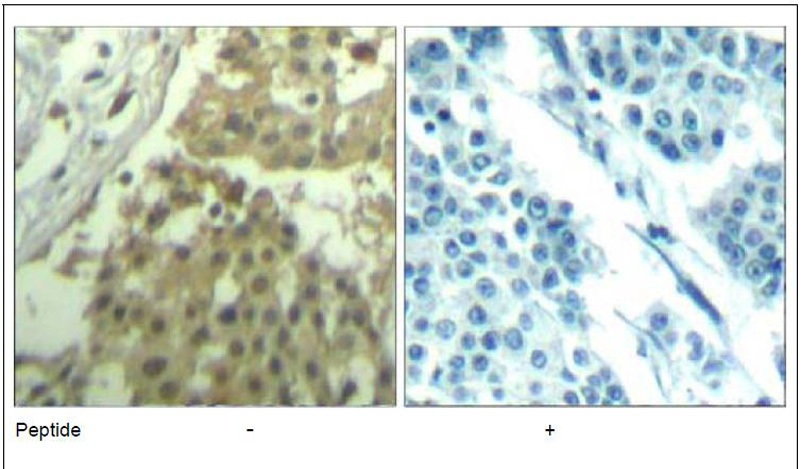cdc2 (Ab-19) Antibody (OAEC00674) in Human breast carcinoma cells using Immunohistochemistry