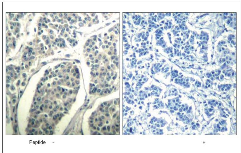 ABL1/2 (Ab-393/429) Antibody (OAEC00675) in Human breast carcinoma cells using Immunohistochemistry