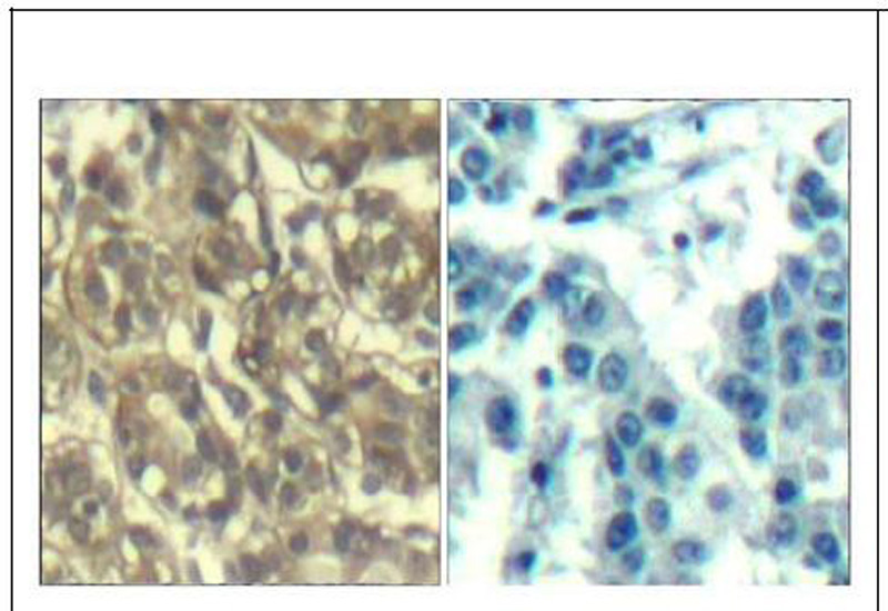 Cyclin B1 (Ab-147) Antibody (OAEC00679) in Human breast carcinoma cells using Immunohistochemistry