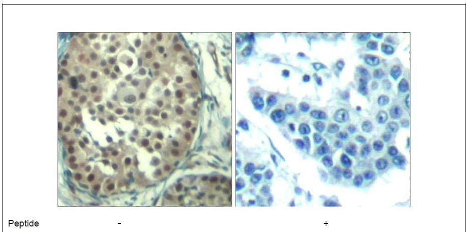 Cyclin E1 (Ab-395) Antibody (OAEC00680) in Human breast carcinoma cells using Immunohistochemistry