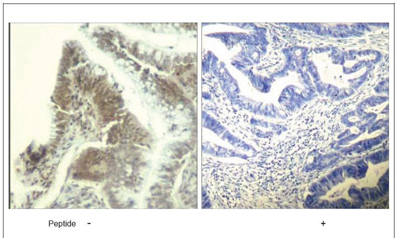CDK6 (Ab-13) Antibody (OAEC00681) in Human colon carcinoma cells using Immunohistochemistry