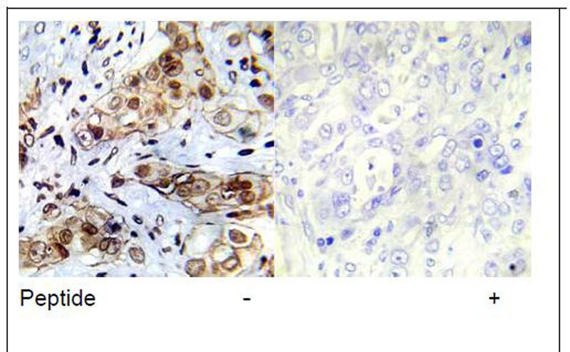Abl1 (Ab-412) Antibody (OAEC00688) in Human breast carcinoma cells using Immunohistochemistry