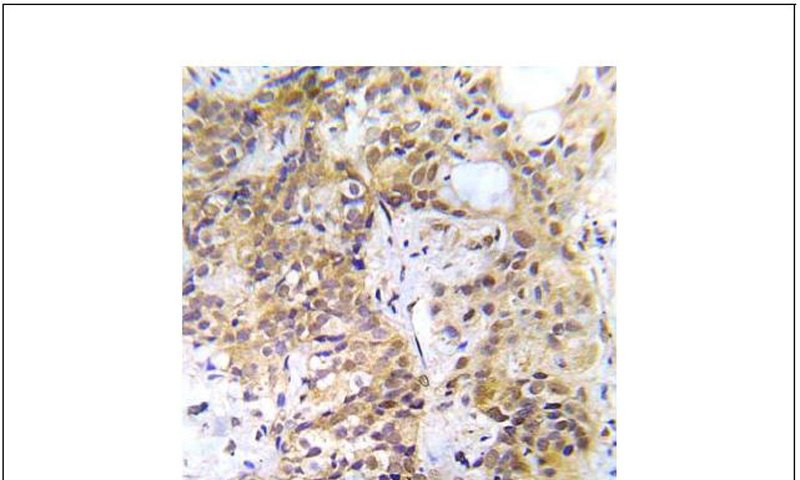CHK2 (Ab-387) Antibody (OAEC00702) in Human lung adenocarcinoma cells using Immunohistochemistry