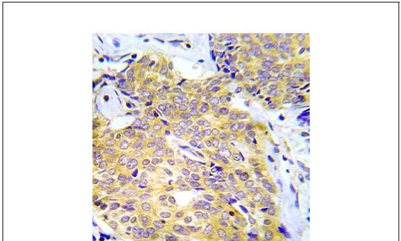 CrkL (Ab-207) Antibody (OAEC00704) in Human lung adenocarcinoma cells using Immunohistochemistry