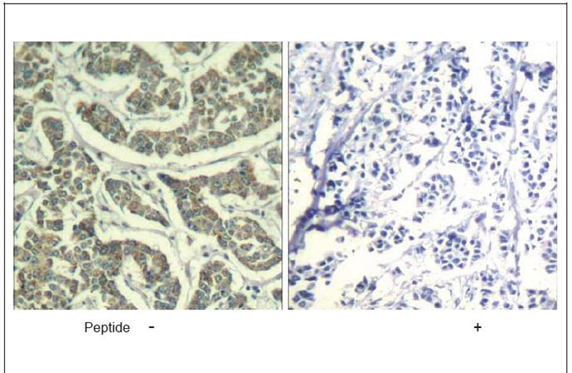 ATR (Ab-428) Antibody (OAEC01390) in Human breast carcinoma cells using Immunohistochemistry